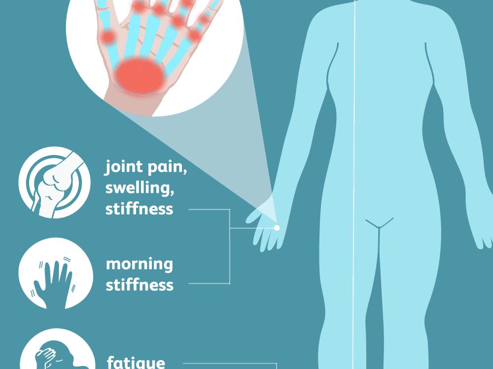 ha fájnak az ujjak ízületei, hogyan kell kezelni izületi gyulladás gyógyulási ideje