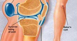 a térdízület gyulladásának belső oldalsó ligamentuma