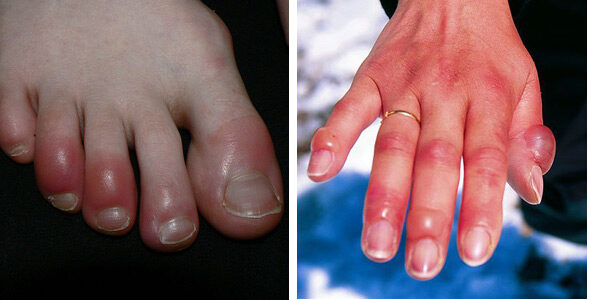 ujj gyulladás kezelése