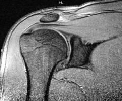 a jobb könyökízület deformáló artrózisa