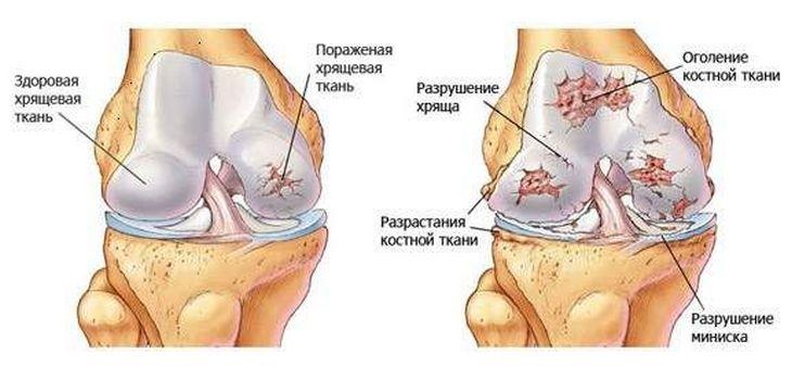 porcízületek gyógyszerei)