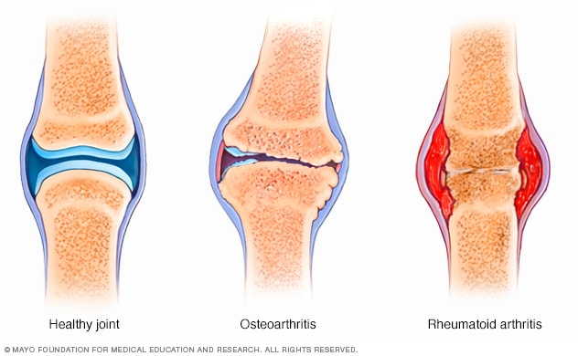 mesterséges szinoviális folyadékkészítmények a csípőízülethez ízületi fájdalom teraflex ár