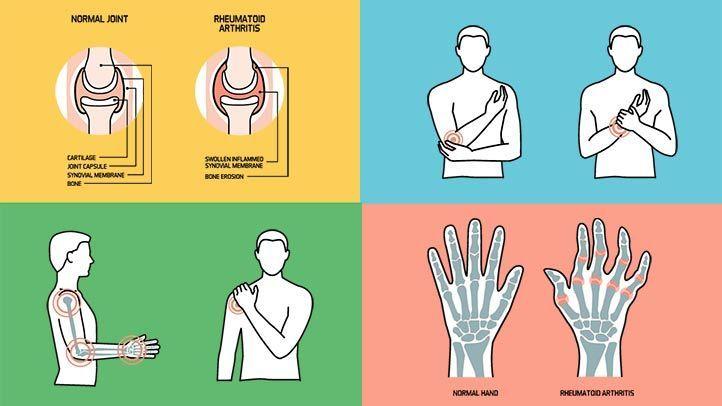 reumás ízületi fájdalommal fájdalom és az ujjak ízületeinek ropogása