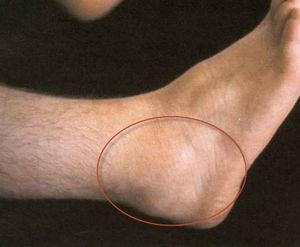 a bokaízület gyulladása