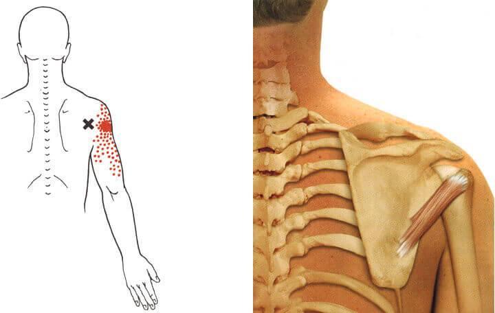 fájdalom a hát alsó részében és a lábak ízületeiben