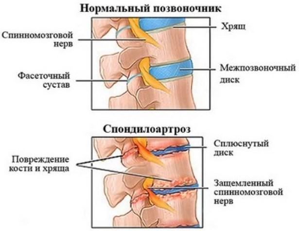 az osteokondrozis gyógyszereinek felsorolása)