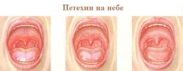 a mononukleózis fáj az ízületekről