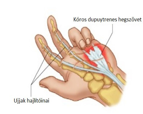 az ujjak ízületei növekednek