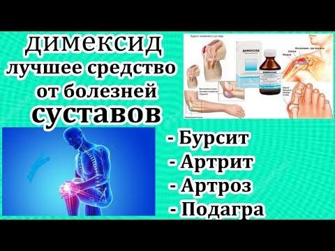 artrózis a vállkezelésben