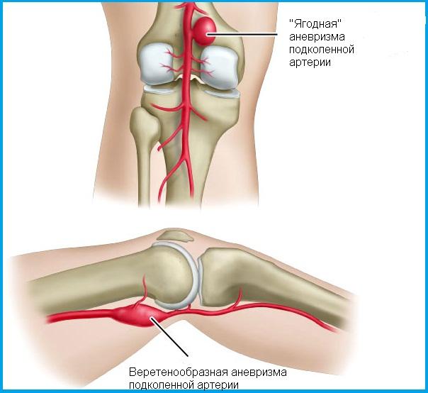 a térdízület fájdalmának oka gyermekeknél biszfoszfonátok az artrózis kezelésében