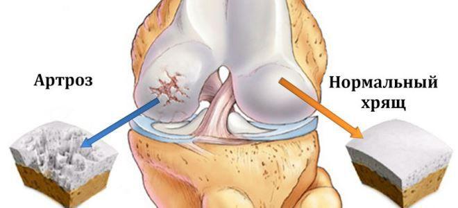 hogyan válasszunk cukornádot a térd artrózisához)