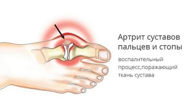 fájó hüvelykujjízület