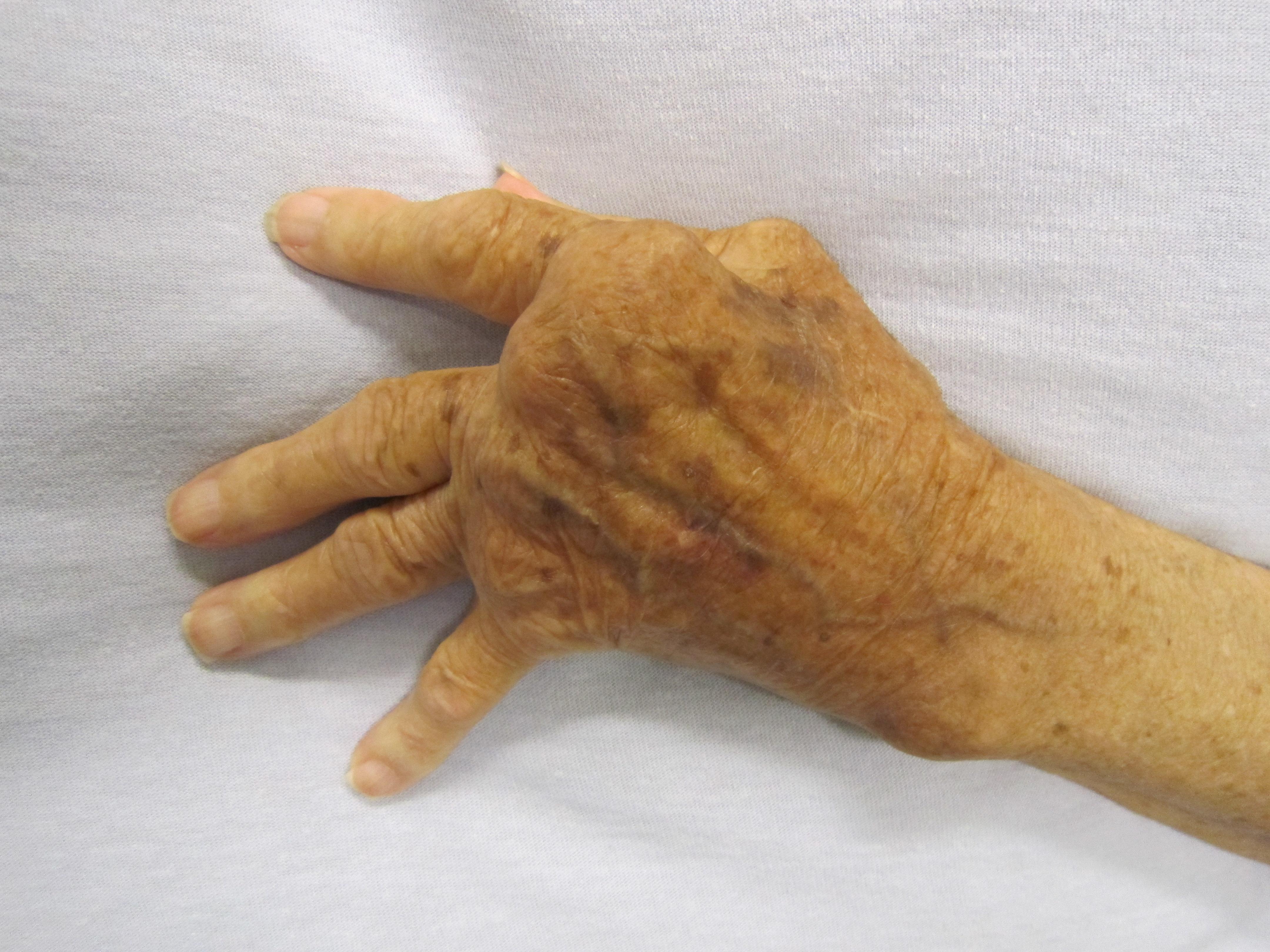 rheumatoid arthritis 3 fokos kéz