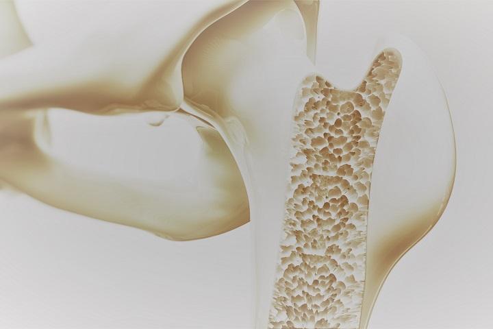 gyógyszerek csontritkulás fájdalmakhoz