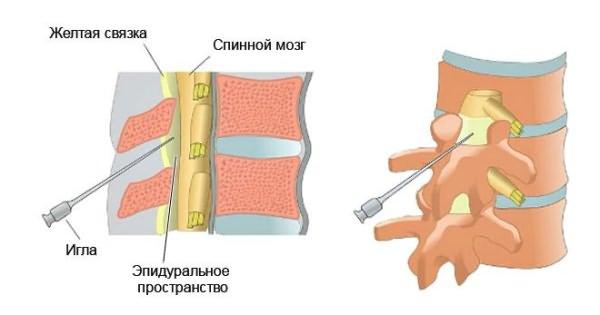 a legjobb gyógyszerek az osteochondrozishoz)