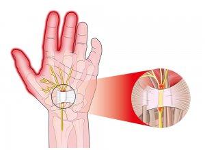 hogyan kell kezelni az ujj elmozdult ízületét