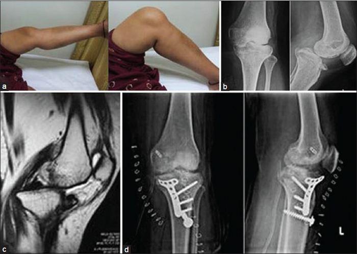 König-kór (osteochondritis boncolása) - Bőrgyulladás