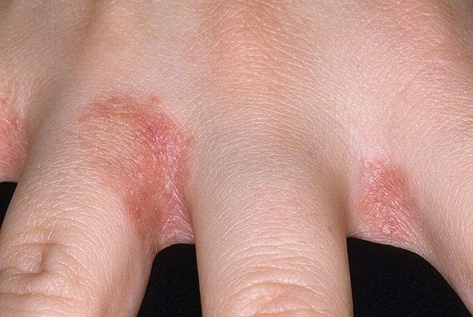 bőrbetegség a kezek ízületein)