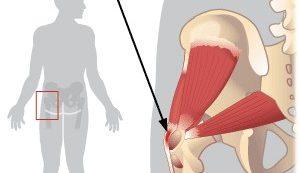 Csípőízületi diszplázia: jelek, tünetek és kezelés | bezenyeiskola.hu