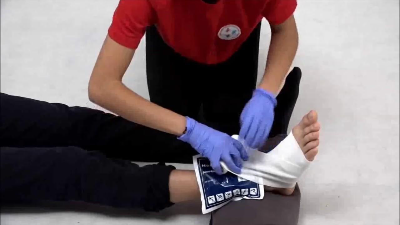 ízületi sérülés tenyérkezelés)
