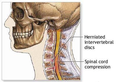 Scheuermann-kór tünetei és kezelése