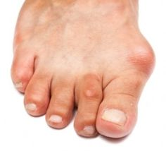 hogyan lehet gyógyítani a lábak ízületeiben fellépő gyulladást)