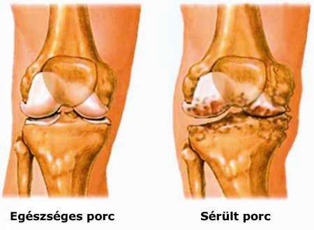 arthrosis kezelés zheleznovodskban