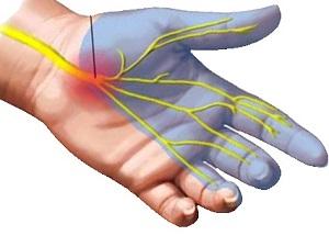a kéz traumatikus artrózisa és kezelése