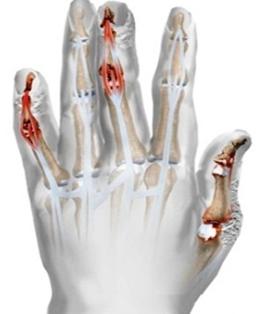 hogyan kell kezelni a csípőízület periarthrosisát gerincvelő derékközi csontritkulása artrózisa