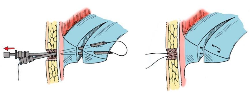 A középső térdcsukló meniszkuszának károsodása: tünetek, kezelés