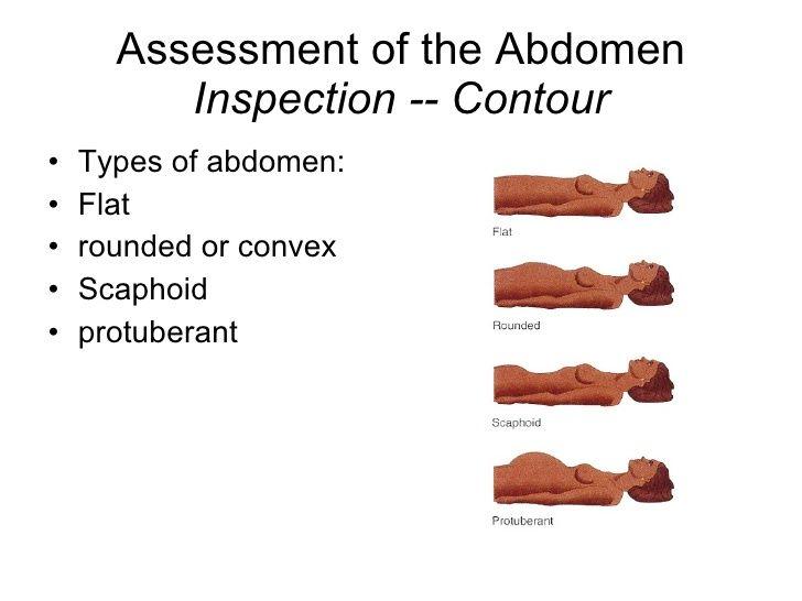 scaphoid abdomen