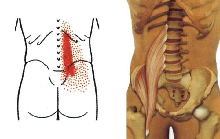 a deformáló artrózis standard kezelése)