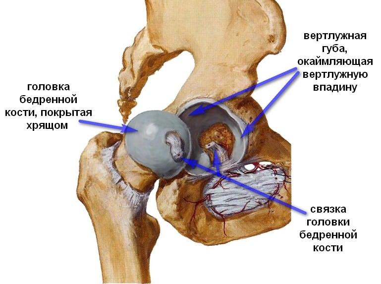 éles fájdalmak a bal csípőízületben)