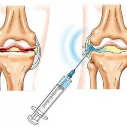 injekciók a vállízületek fájdalmáért