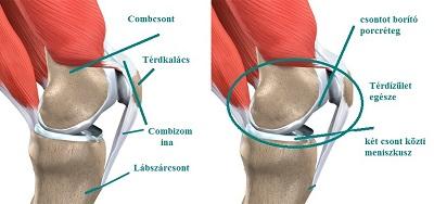 a kéz ízületeinek osteoarthritis. kezelés fájdalom a kezek és a lábak ízületeiben