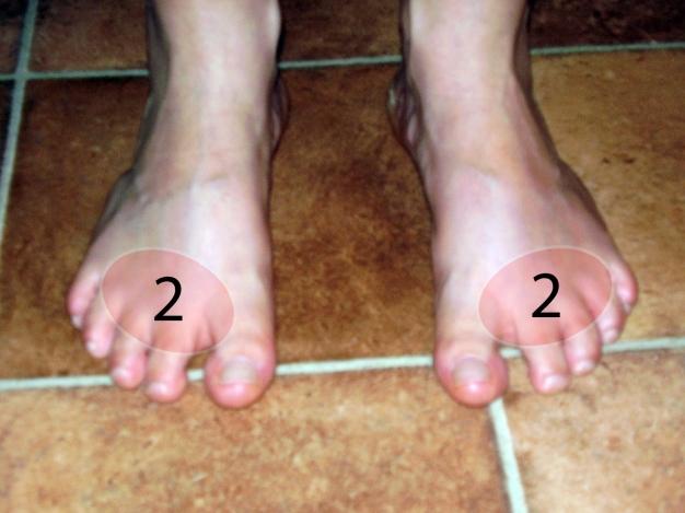 lábujjak alatti fájdalom)