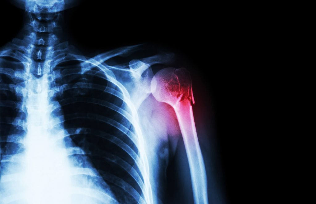 az interfalangeális ízületek osteoarthritis kezelése