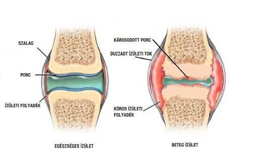 patellaris artrózis kezelése