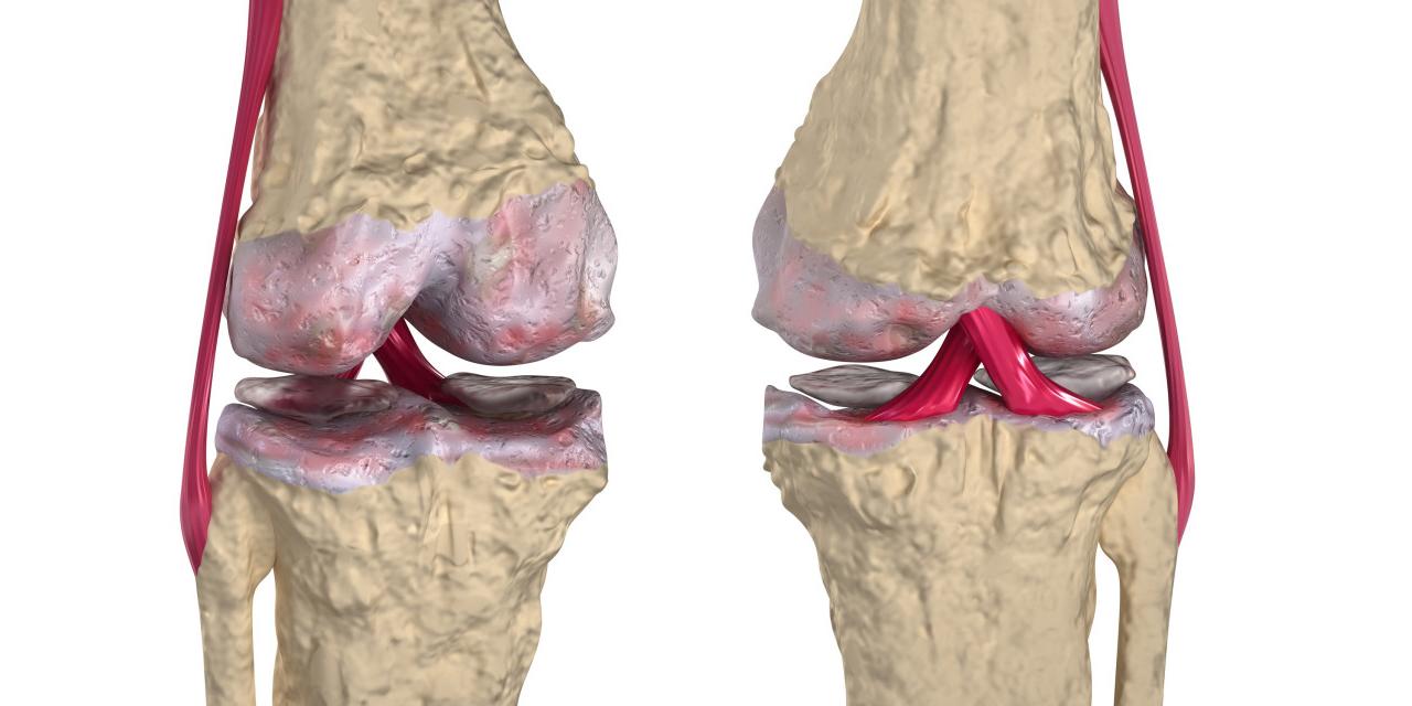 a könyök ízületei fájnak, mit kell tenni ízületi kötések ízületi gyulladása