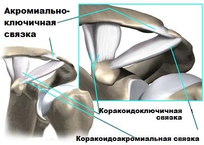kiterjedt artróziskezelés