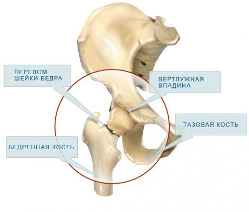 csípőízületi csontritkulások sarok boka fájdalom