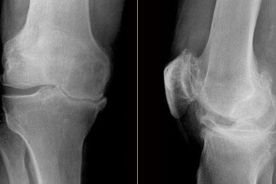 osteoarthritis radiology)