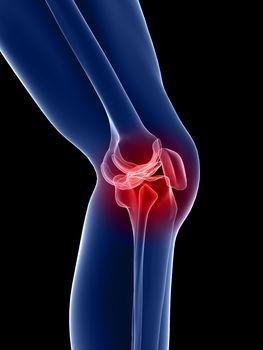 a térdízület posztraumás artrózisa)