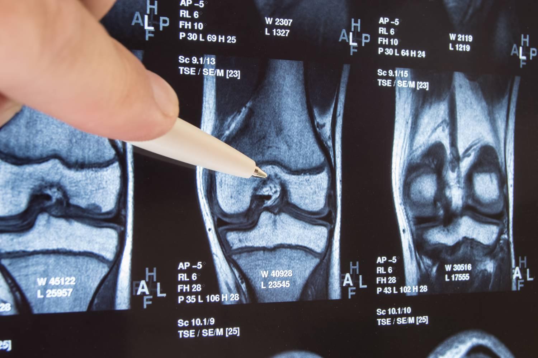 térd artrózisa pszichológiai okok