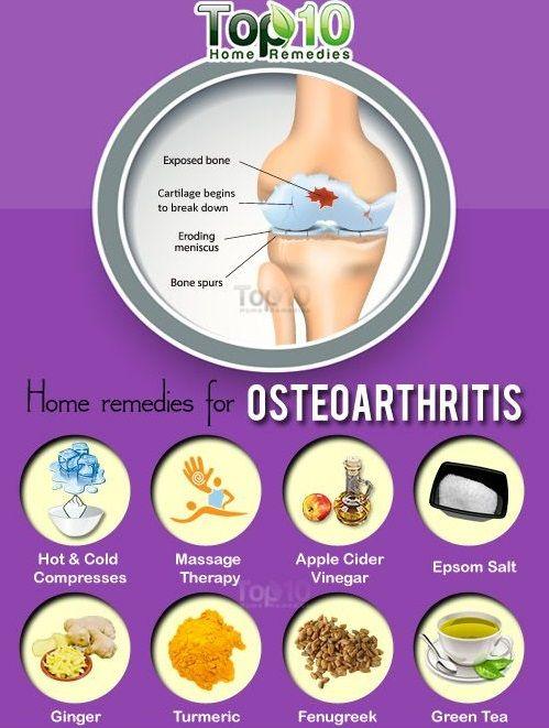 Artrózis és térd osteoarthrosis - bezenyeiskola.hu