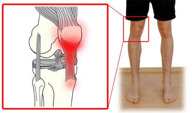 ízületi fájdalom a lapos lábak miatt a térdízület meniszkuszának trauma utáni gyógyulása