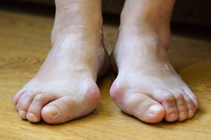 ízületi fájdalom a lábon járás közben