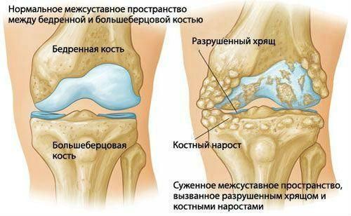 a sacroiliac ízületek deformáló artrózisa)