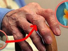 a kéz kezeinek ízületei fájnak