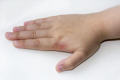viszkető foltok a kézízületi fájdalmakon